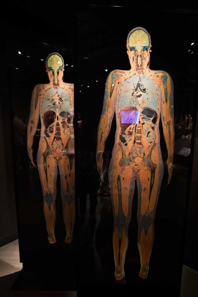 drive-swim-fly-the-netherlands-amsterdam-body-world-happiness-museum-corpse-cadaver-human-body-slices