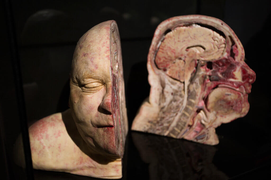 drive-swim-fly-the-netherlands-amsterdam-body-world-happiness-museum-corpse-cadaver-human-head-slice-bald